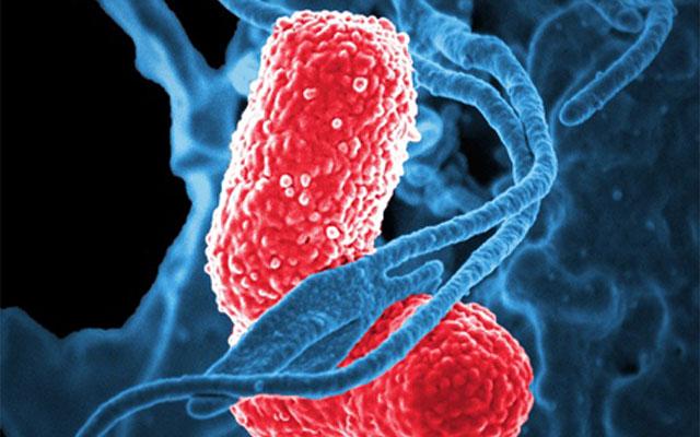 bacteria-811861_640_400